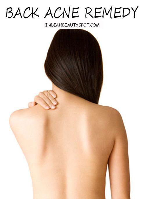 acne corps