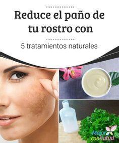 Tratamiento naturales para manchas en la cara