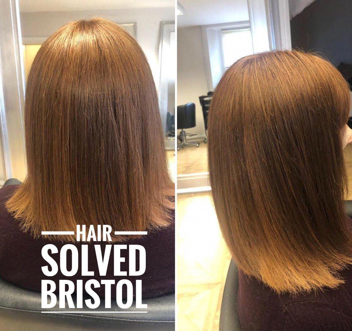 Hair Loss Solution Bristol In 2020 Hair Loss Women Natural Hair Loss Treatment Hair Loss Specialist