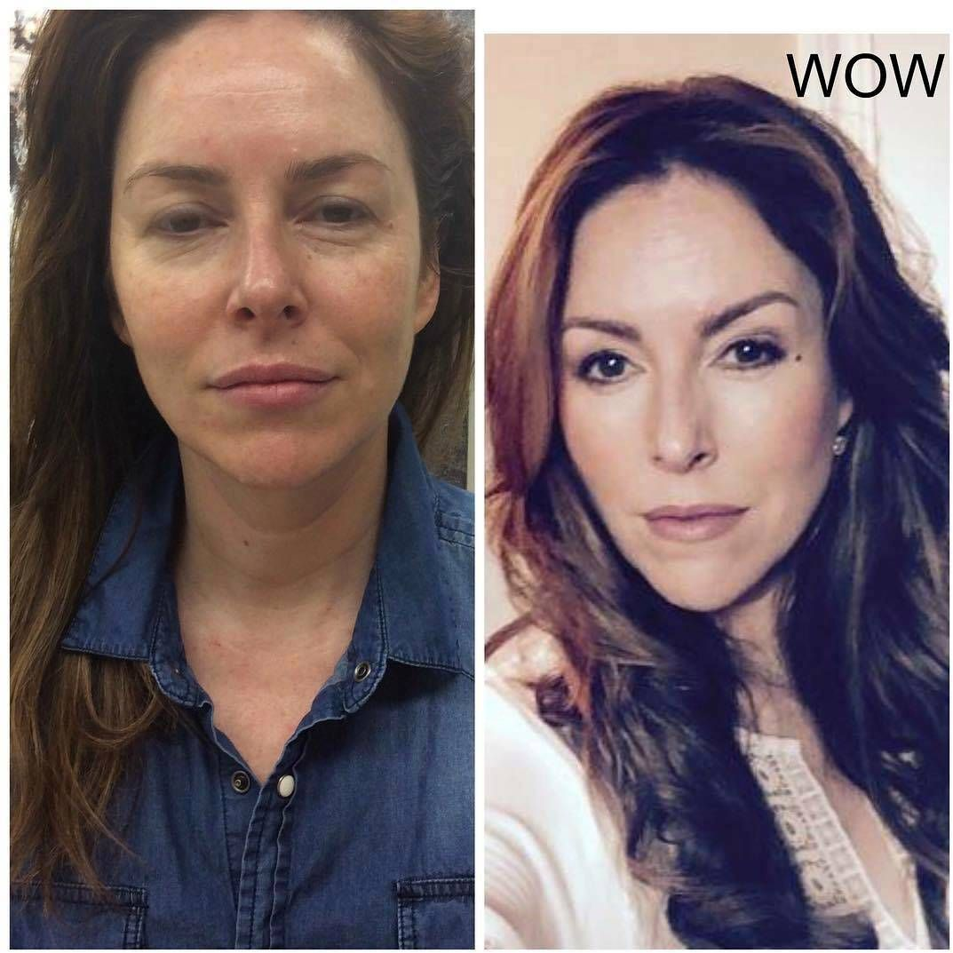Before And After Of Thermage (11) | Thermage Facelift | Face