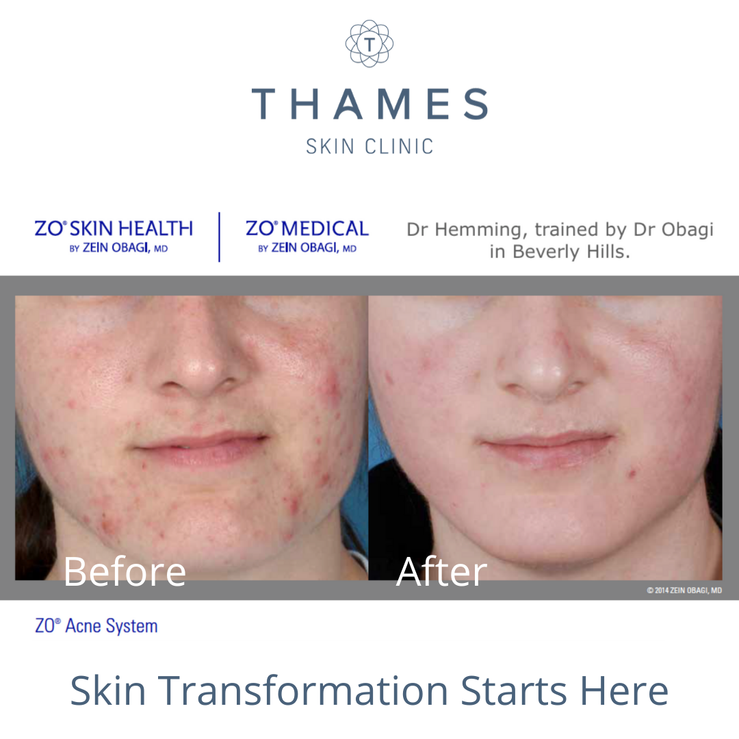 Skin Transformation At Thames Skin Clinic Takes You On A Journey Creating Healthy Skin Correcting Pr In 2020 Skin Health Skin Clinic Professional Skin Care Products