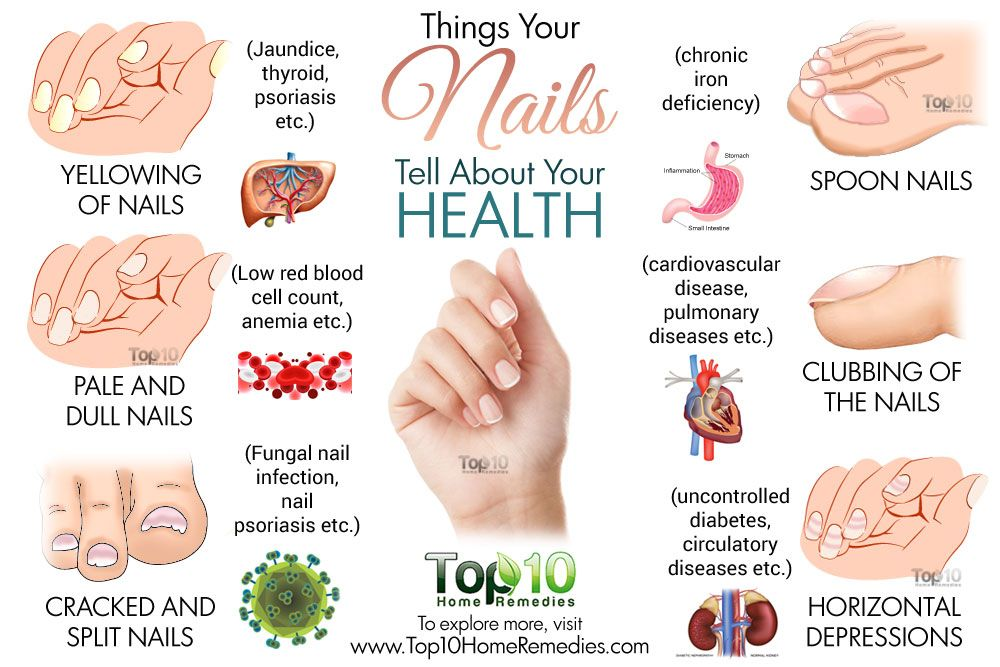 What Your Nails Reveal About Your Health  Nail Psoriasis -2454