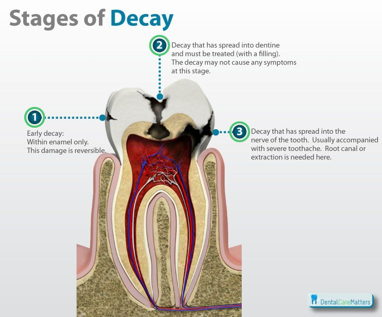 Stages of tooth decay. Easy visual for anyone who is