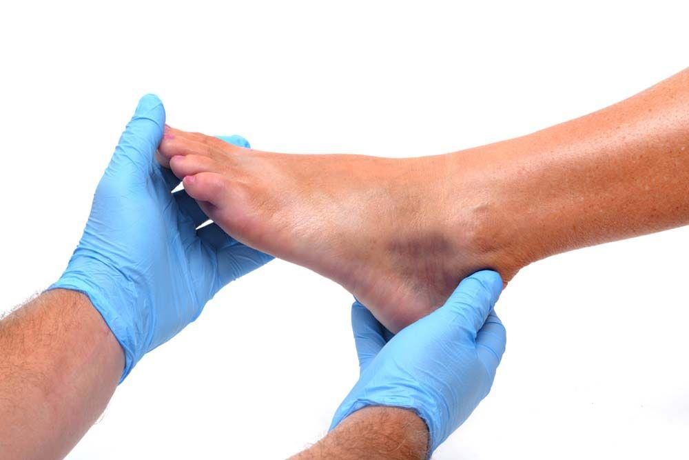 gyakorlatok a bokaízület fájdalmához