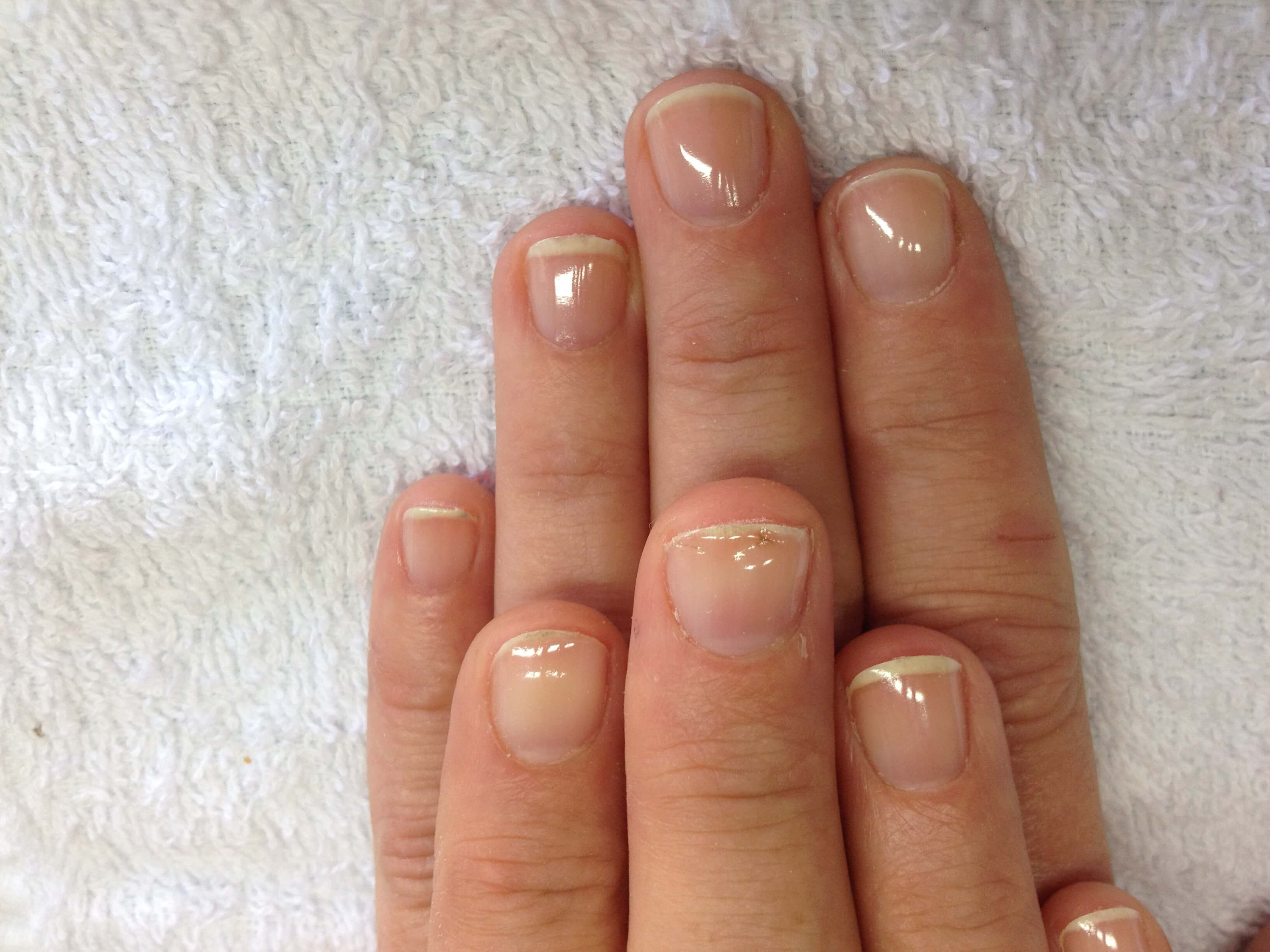 Healing nails after acrylics | Nails | Pinterest | Acrylics and ...