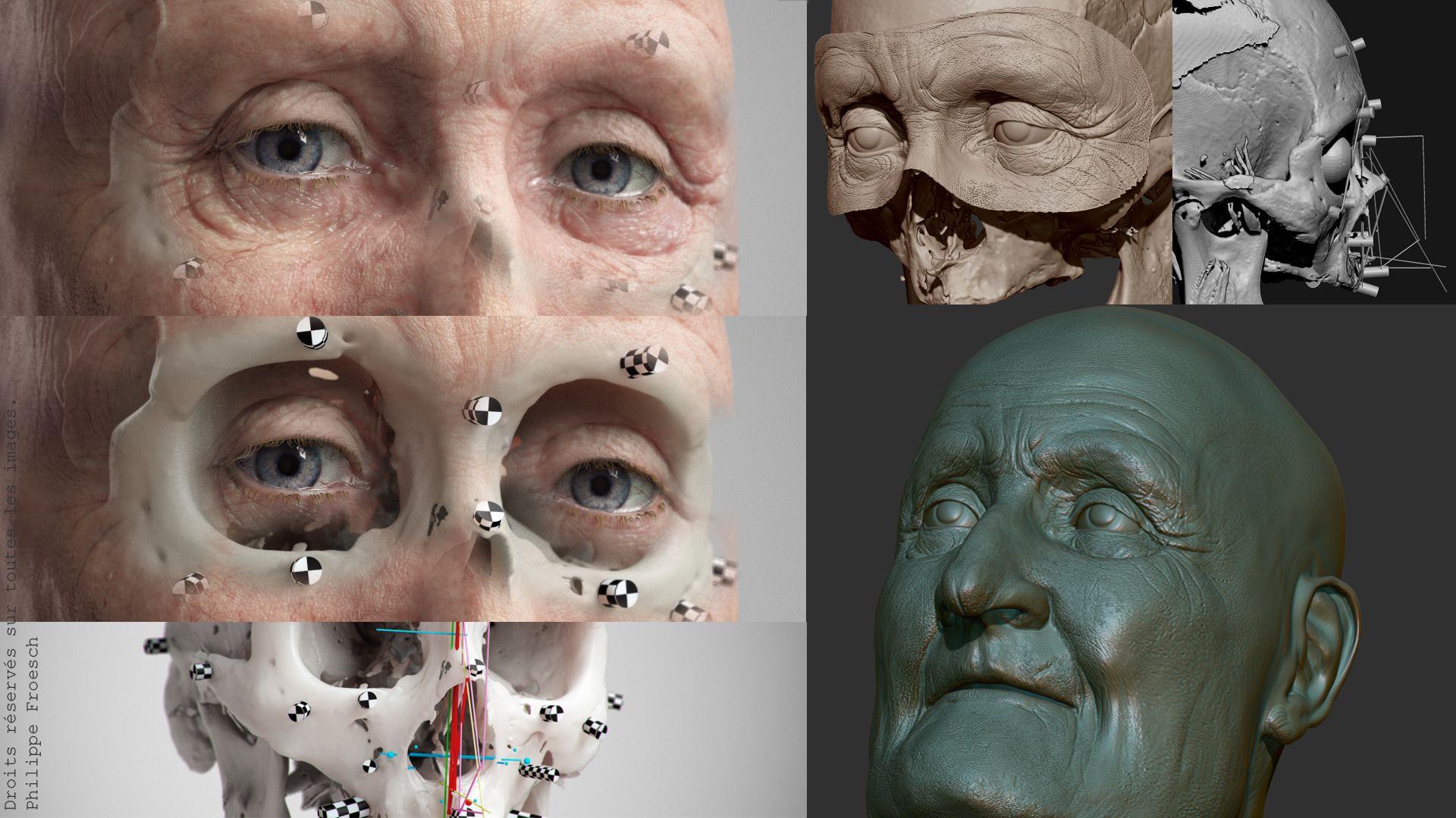 Reconstruction facial