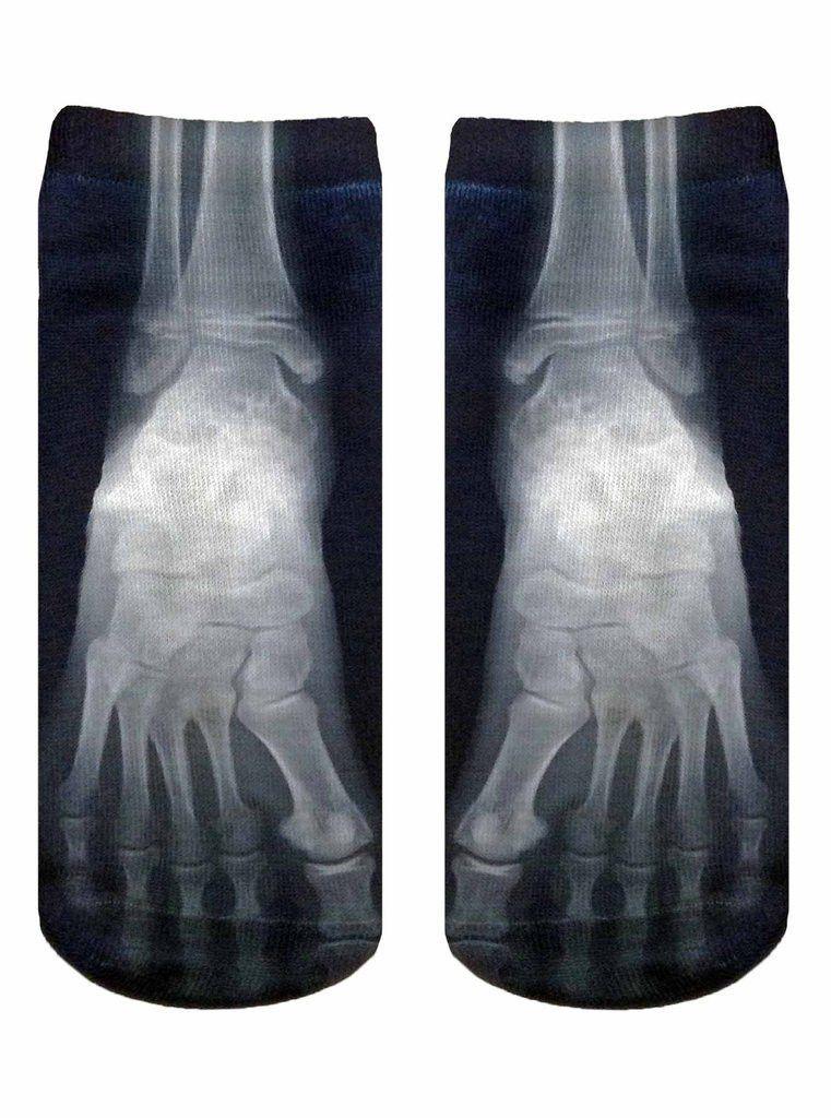 75bdbdad26c0 X-Ray Ankle Socks for Men & Women | Relax Event Studio | Ankle socks ...