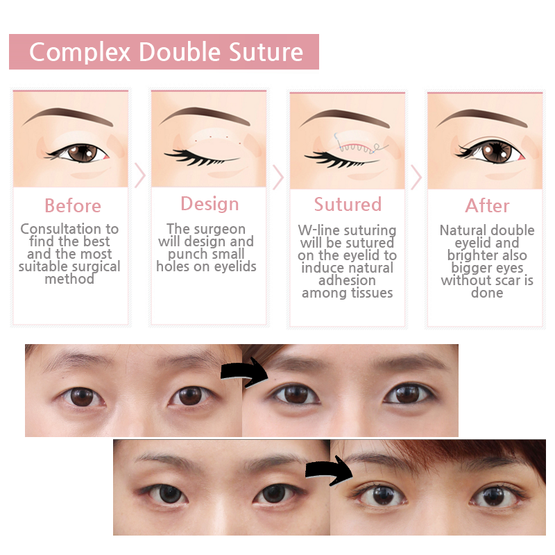 Non-Incision method of double eyelid surgery at Wonjin Plastic Surgery, is perfect for those who want a natural double eyelid but afraid of incision. Just like regular non-incision method you can also minimize scars and swelling so you can return to your daily activity as soon as possible. People with think eyelid skin with almost no sagging is recommended to do double eyelid surgery with this method.   BBM ☞ 56003578 PM ☞ [http://m.me/parkwonjin33] Register ☞ [http://goo.gl/35PqfQ]