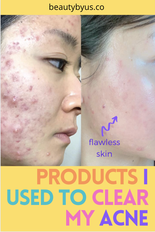The Best Skincare Routine Products For Acne Acne Prone Skin Care Simple Face Regimen In 2020 Acne Prone Skin Care Acne Prone Skin Cystic Acne Treatment