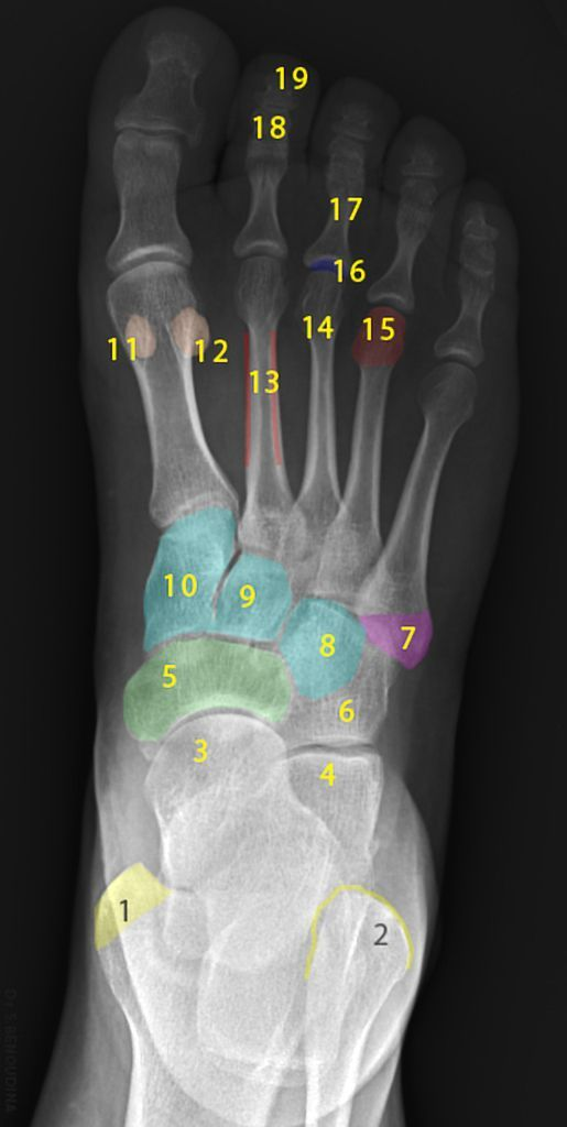 Normal radiographic anatomy of the foot | Radiology Case ...