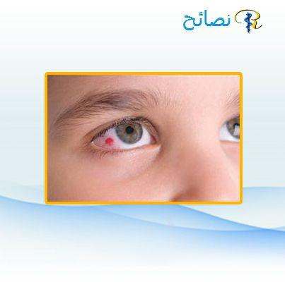 اسباب ظفر العين أسباب تكون الظفر غير معروفة ولكن التعرض المزمن والطويل لأشعة الشمس خصوصا الأشعة فوق البنفسجية وتهيج العين Health Tips Helping People Health