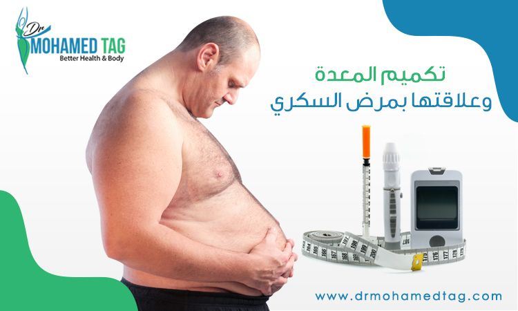 افضل سعرعملية تكميم المعدة في مصر دكتور محمد تاج الدين Body Health Health And Wellness Health
