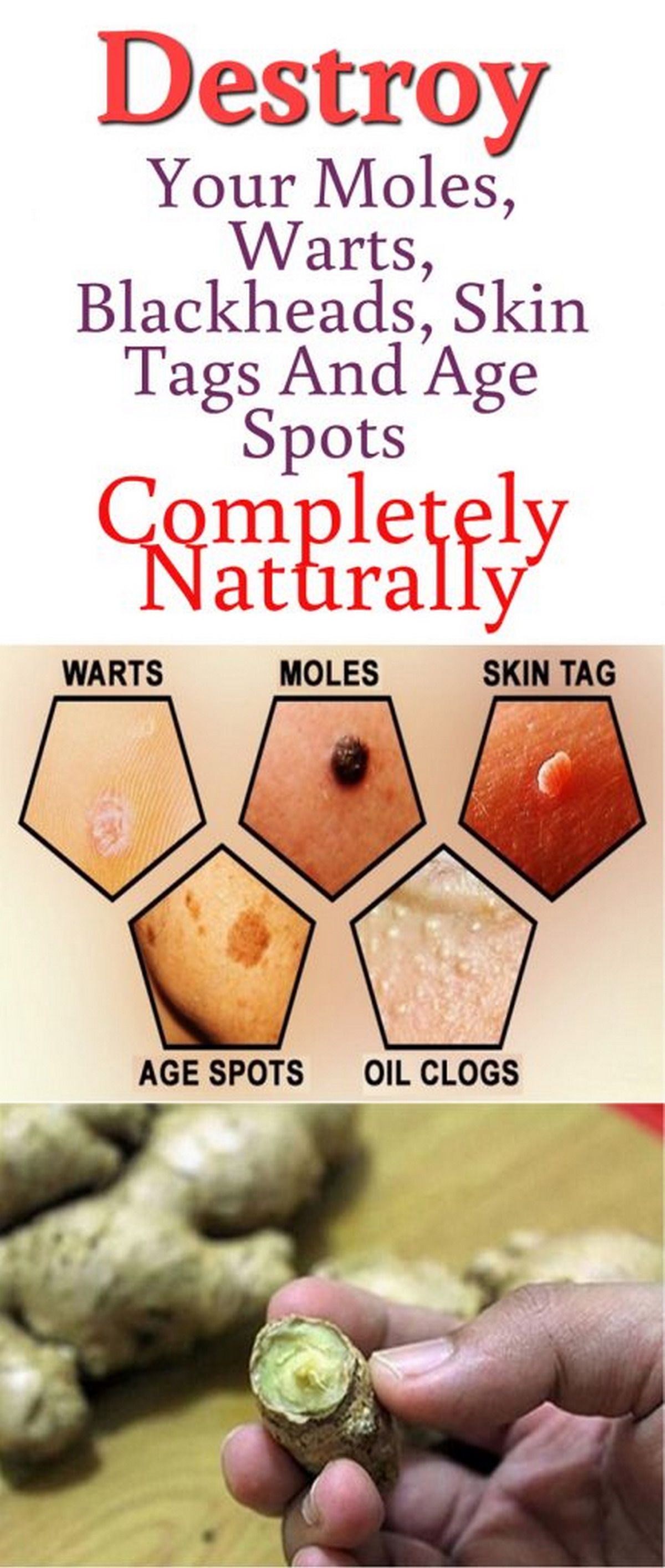 Destroy your moles warts blackheads skin tags and age