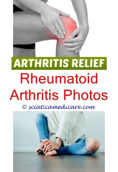 most common arthritis can you diagnose arthritis with a blood test - copper  arthritis gloves as seen on tv.joint pain … | Arthritis joint pain remedies  ...