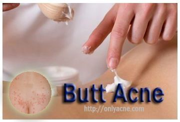 deep spots on buttocks and thighs acne on buttocks home cures