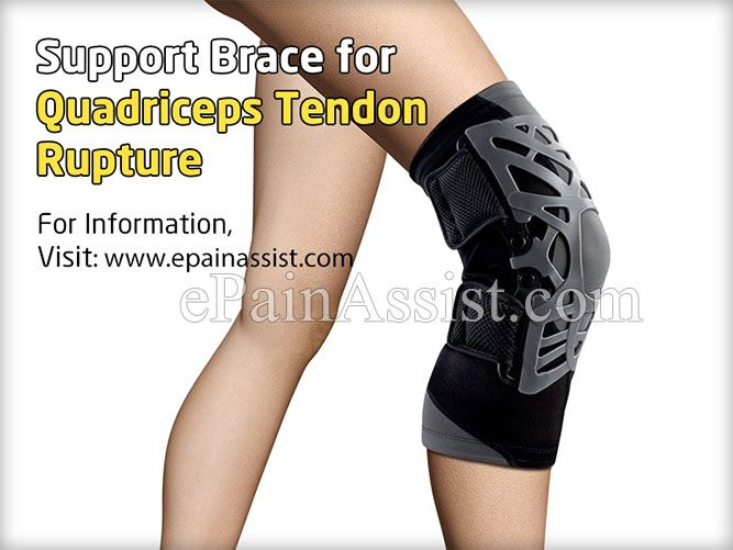 76b214f819 Quadriceps Tendon Rupture | Physical Therapy | Physical therapy ...