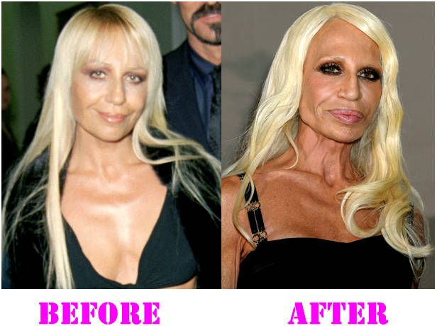 like other superstars donatella versace plastic surgery. Black Bedroom Furniture Sets. Home Design Ideas