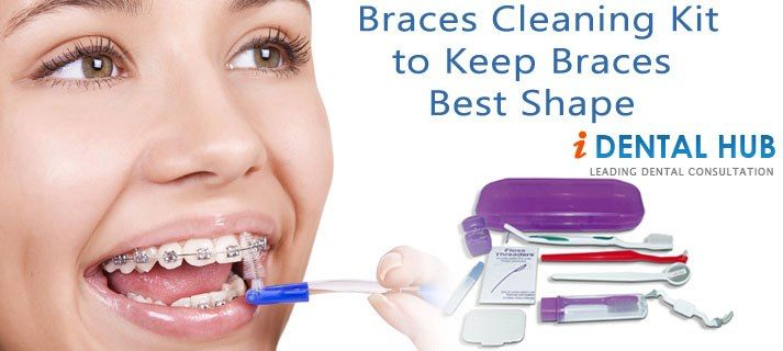 There Are New Age Braces Cleaning Kits That Are Color Accessorized Such As In Black For Men You Won T End Up Digg Dental Braces Orthodontics Braces Teeth Care