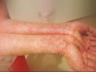 Eczemaallergieseczema Treatmenteczema Cureeczema Symptoms Eczema Cause