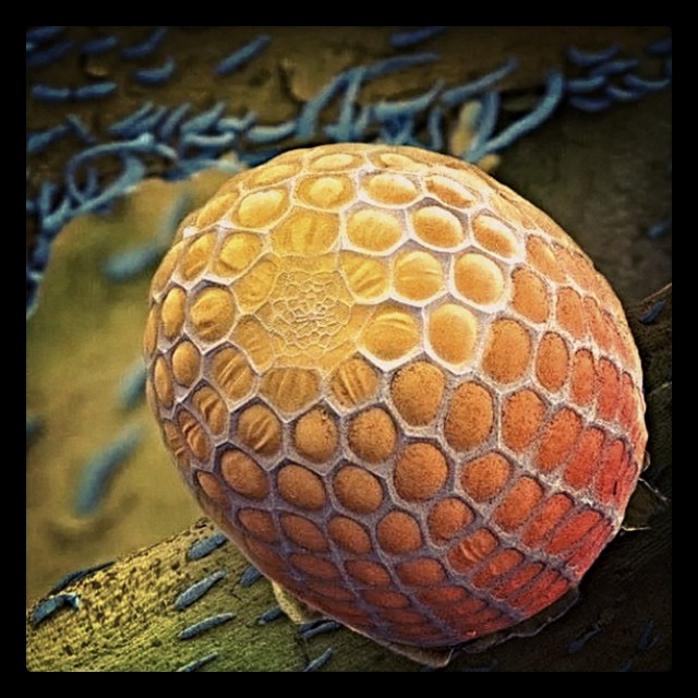 A microscope image of a butterfly egg Microscopic images