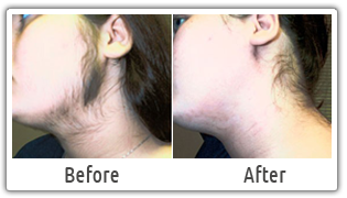 Dr Rohit Batra Provides Various Laser Hair Removal Activities