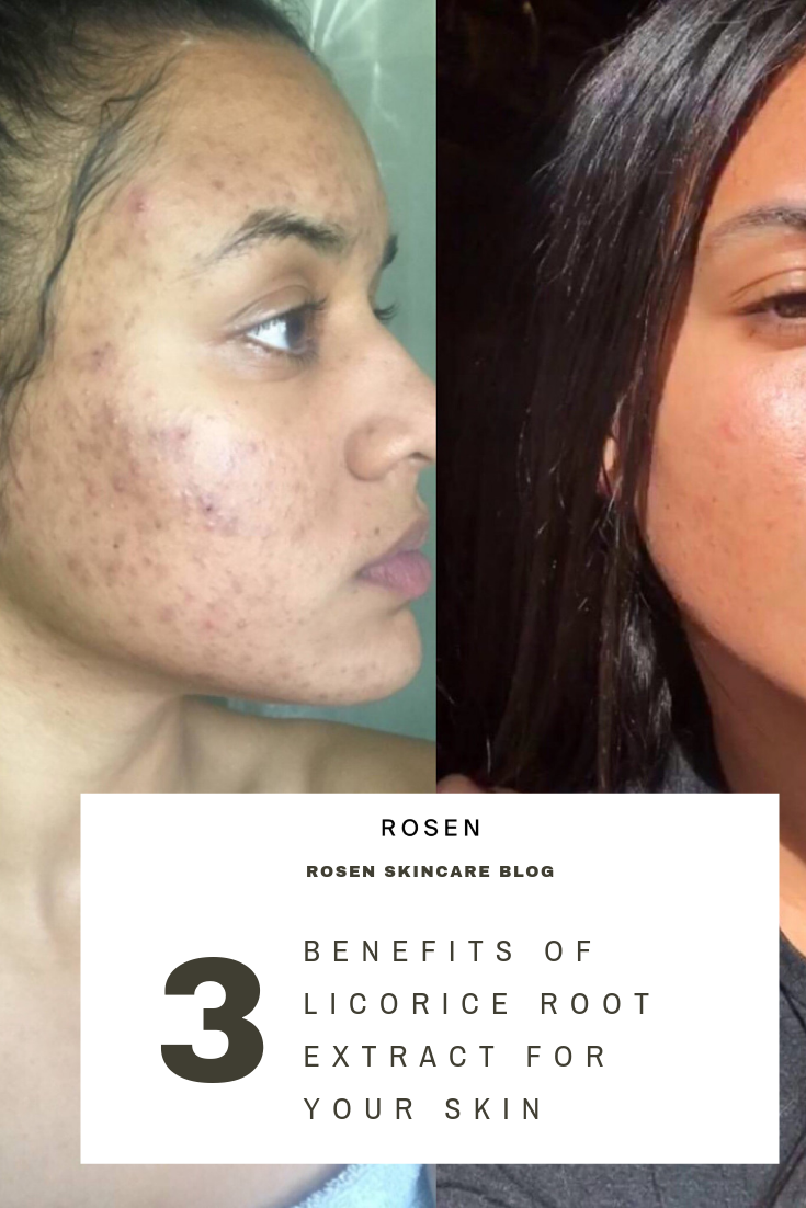 How To Get Rid Of Acne Scars And Hyperpigmentation Naturally