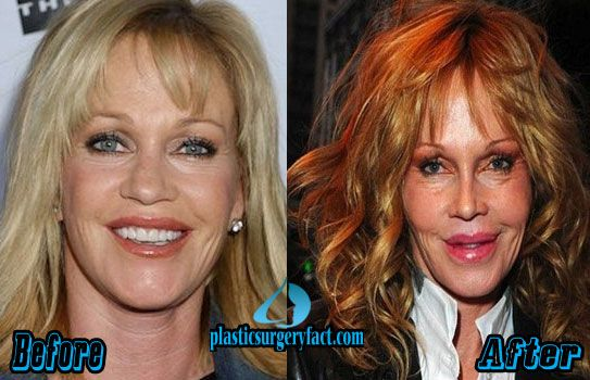 The 25 Best Melanie Griffith Plastic Surgery Ideas On