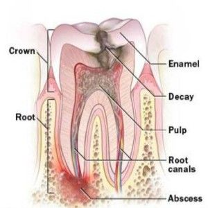 10 Simple Home Remedies For Tooth Infection