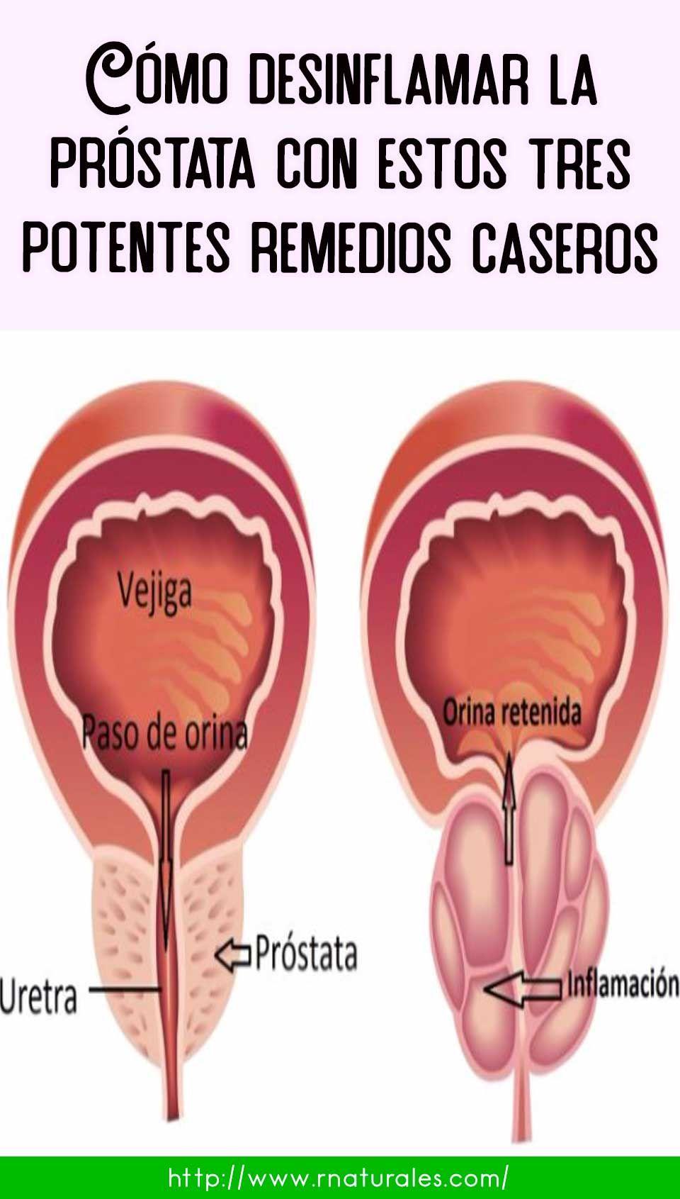 remedios para bajar inflamacion de prostata