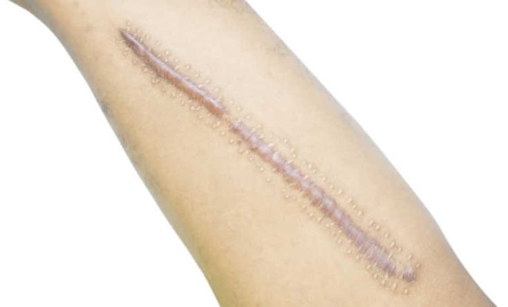 33 Effective Natural Home Remedies for Vitiligo Treatment