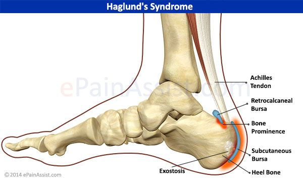 retrocalcaneal spur exercises to lose weight