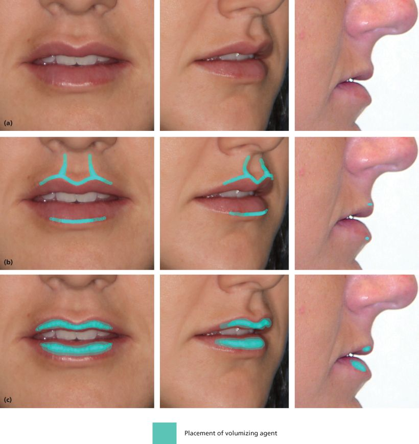 Image Result For Lip Vascular Anatomy Facial Aesthetics
