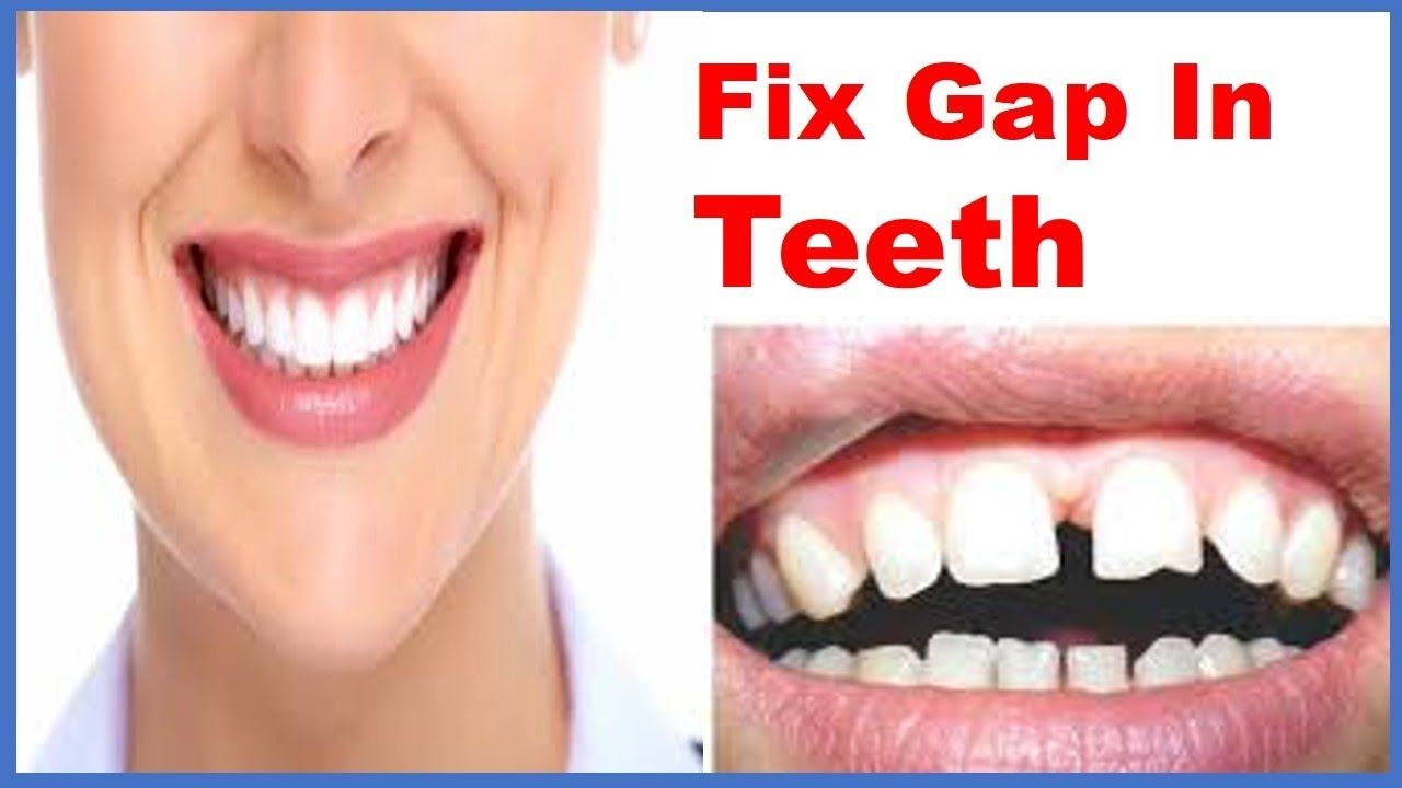 How to reduce gap between teeth naturally at home without