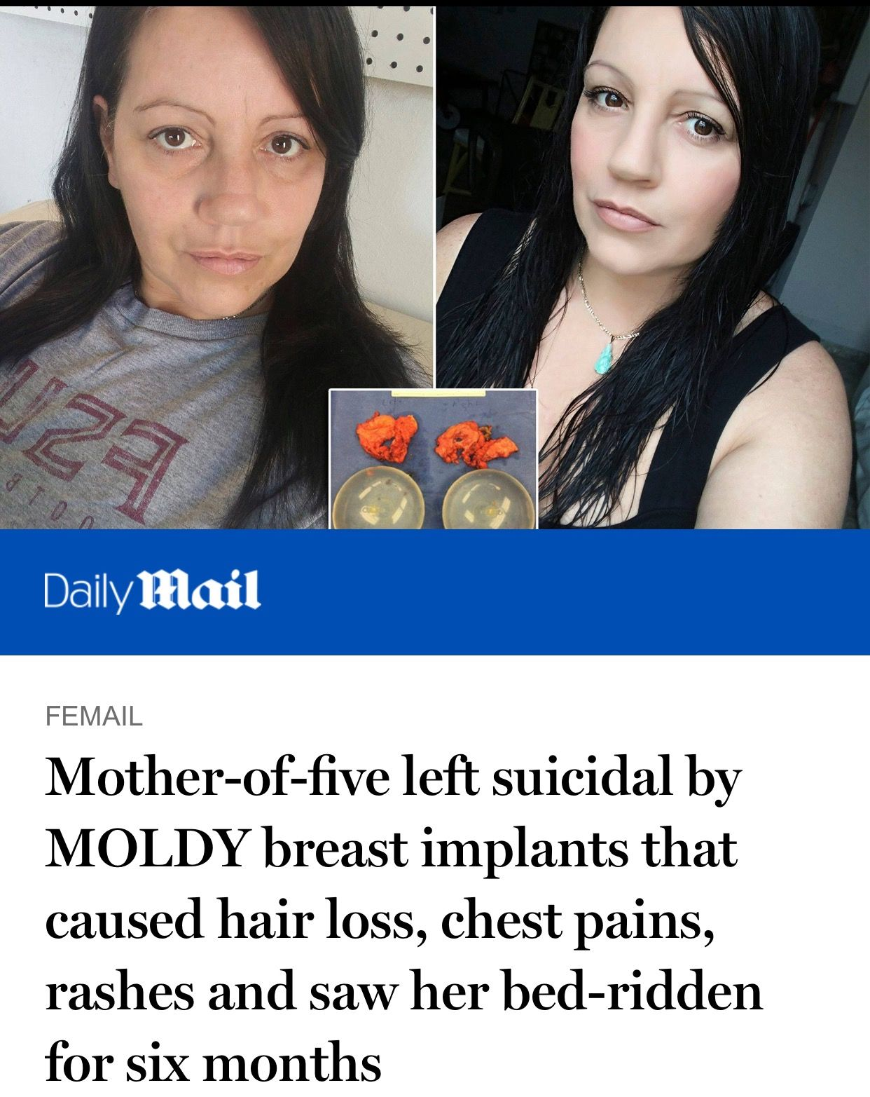 8f05d70937 Mother-of-five left suicidal by MOLDY breast implants that caused hair loss