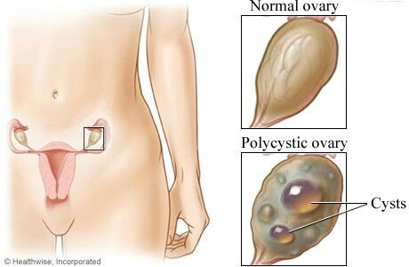 ab8a3c59d8f688a086ff283ed2b429aa - How Hard Is It To Get Pregnant With Polycystic Ovaries