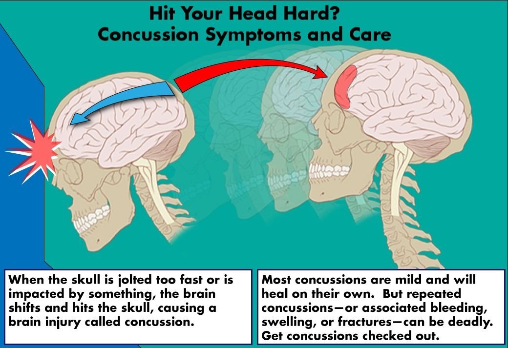 Concussion Symptoms and Care - What I Learned From My Son\'s ...