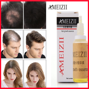 Pin by Memento Deals on À acheter Fast hair regrowth