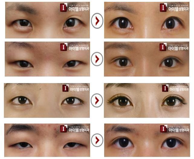 Korean plastic surgery, plastic surgery, cosmetic surgery, eye