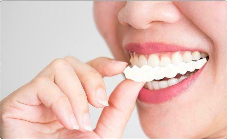 Silicone Instant Smile Veneers Teeth Braces Perfect Smile Perfect Teeth
