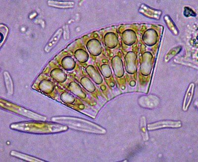 photosynthetic diatoms from River Wear (c) Phil Gates