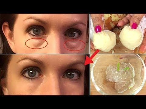 skin care tips that everyone should know  under eye bags