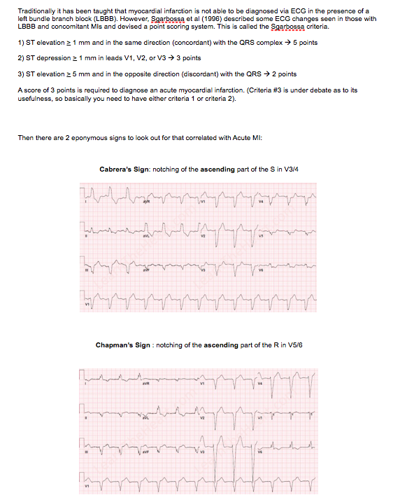 Quick Guide To Ecg Indicators Of Mi In Presence Of Lbbb