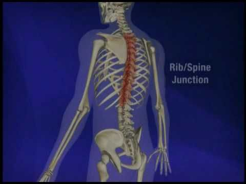 Dr. Gary Vilke discusses the areas of inflammation in ankylosing spondylitis as well as kyphosis.
