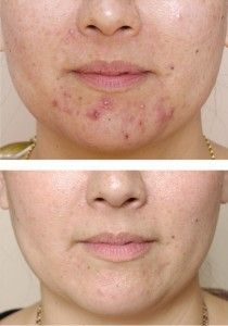 Get rid of Cystic pimples