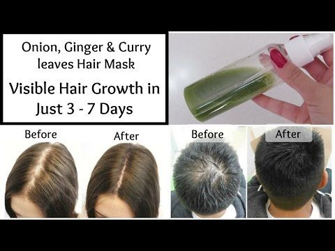 Visible Hair Growth In Just 3 Days With This Onion Ginger And Curry