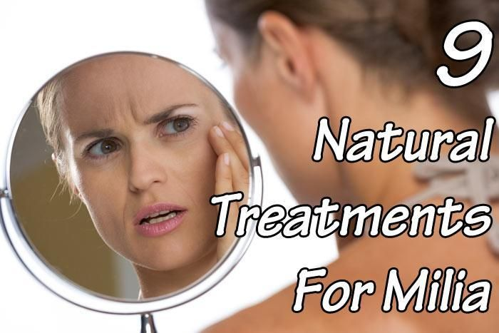 9 Natural Treatments For Milia - Healthy Focus