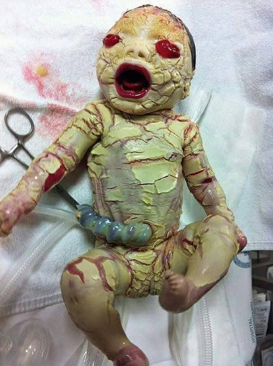 """""""Ichthyosis"""", an excessive keratinization of the skin, It ..."""