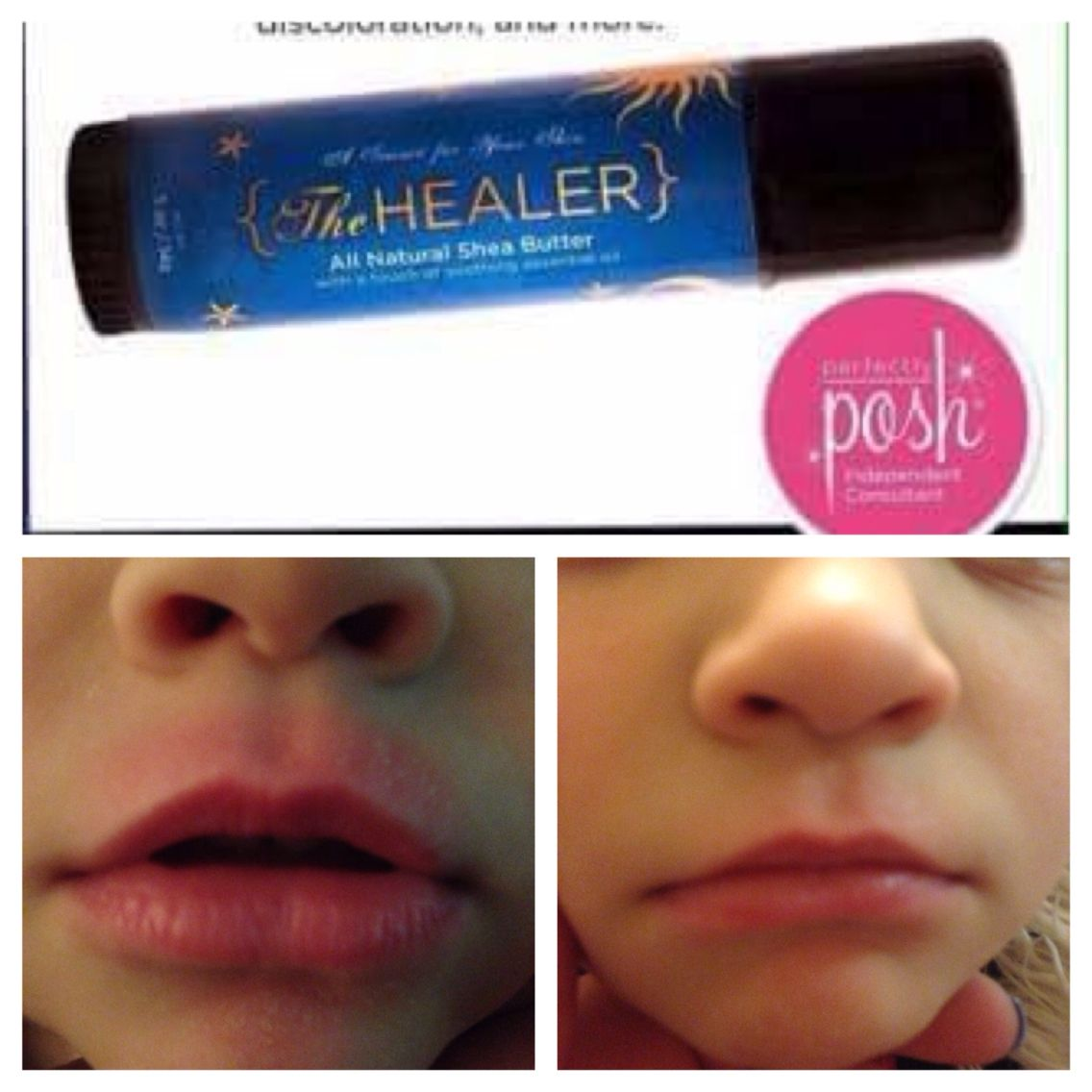 One Application Of The Healer Applied Overnight Best For