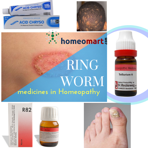 Ring Worm Remedies That Act Fast Are Safe And Side Effect Free