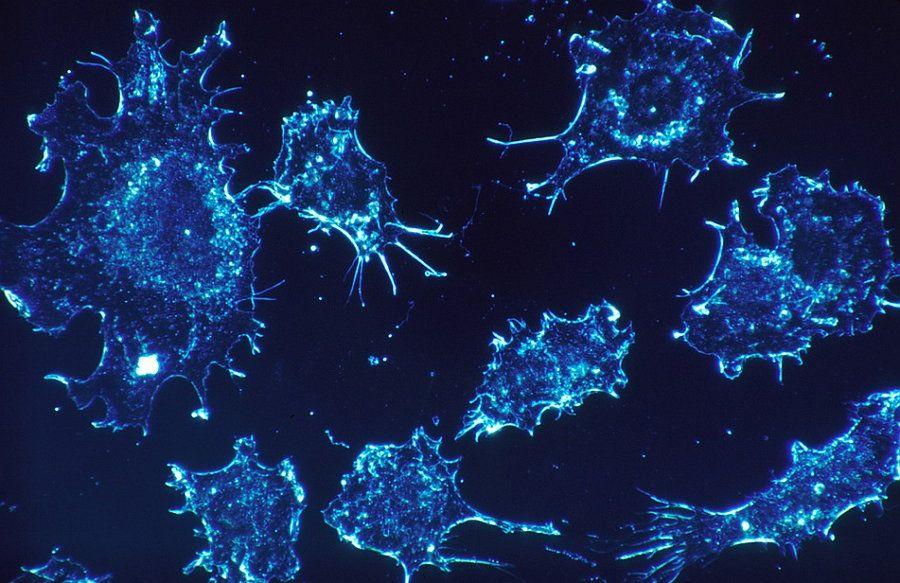 Desarrollan nuevo chip microfluídico que detecta células cancerosas más rápido que métodos convencionales